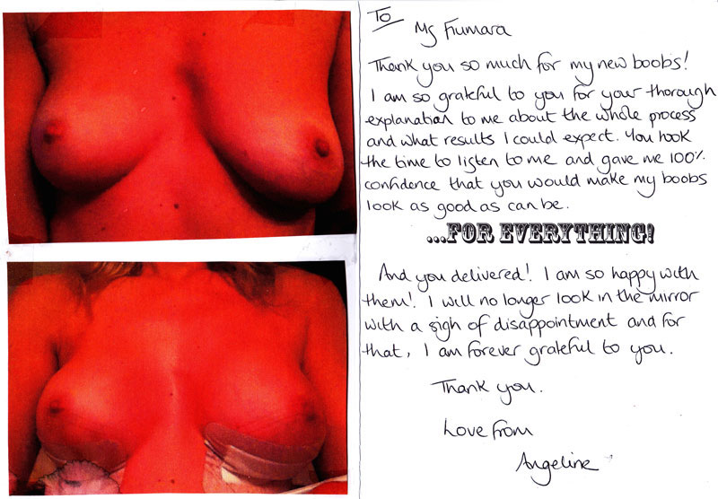 cosmetic surgery thankyou card